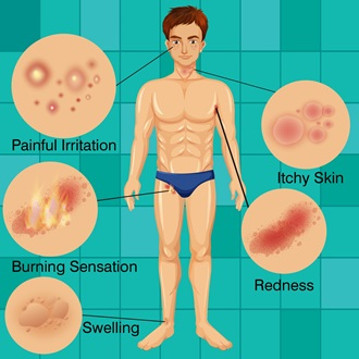 Symptoms of Razor Bumps